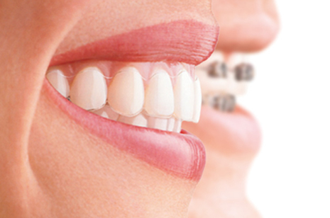Invisalign-'invisible-braces