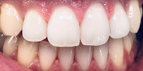 after whitening